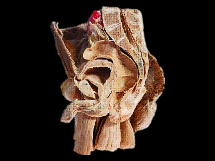 Median saggital section of male plevis plastinated specimens