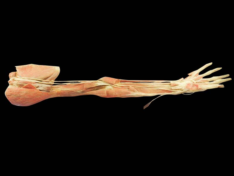 Deep arteries  of upper limb plastination