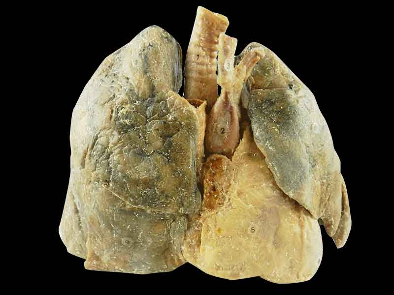 Heart and 2 lungs teaching specimen