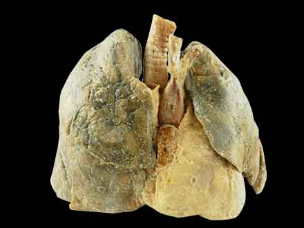 Heart and the 2 lungs