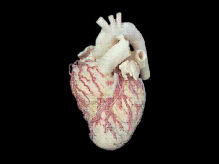 Heart and vascular appearance plastinated specimens