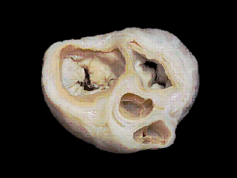valves and fibrous rings of the heart plastinated specimens