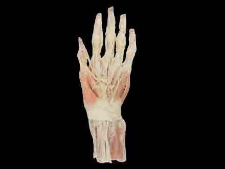 Superficial Hand arteries