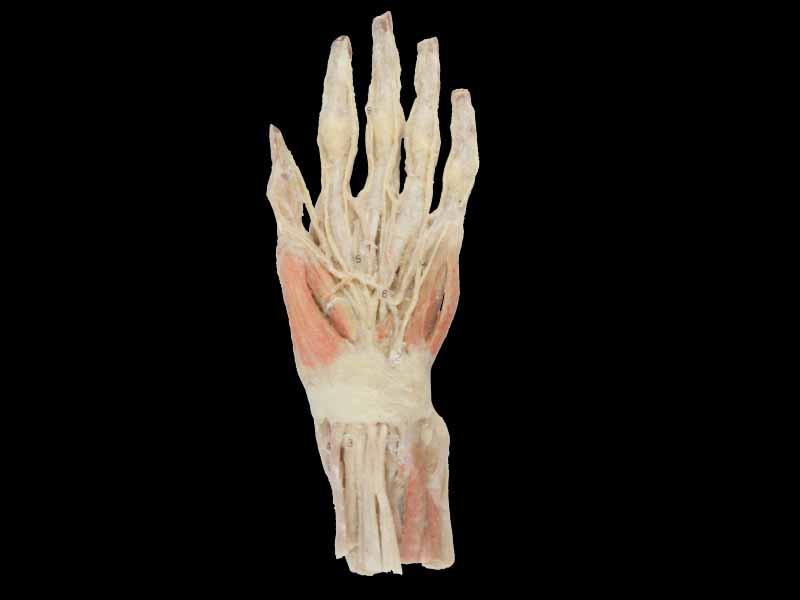 Superficial Hand arteries plastinated specimens,human anatomy model ...