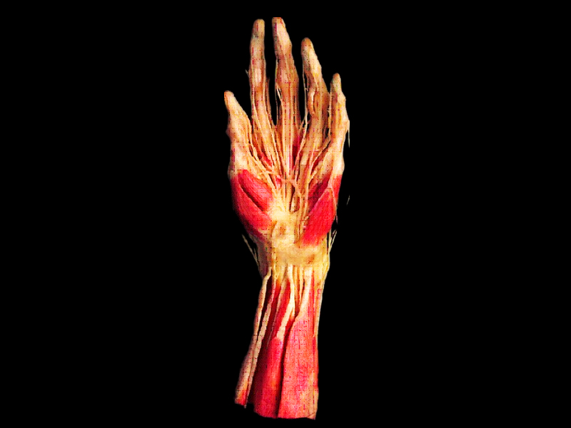 Superficial Hand Arteries Plastinated Specimenshuman Anatomy Model
