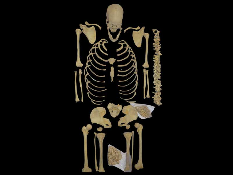 separation of human bones teaching specimen