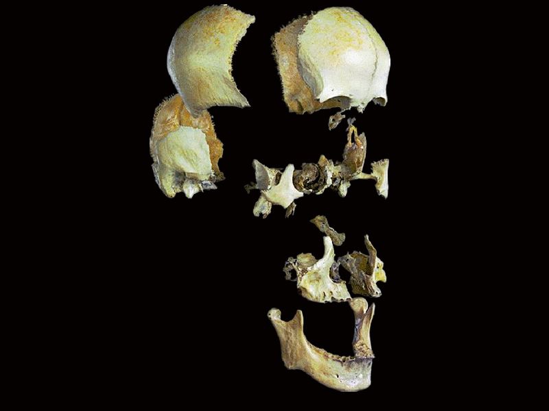Separation of the skull bone skeleton model( real human skull for sale )
