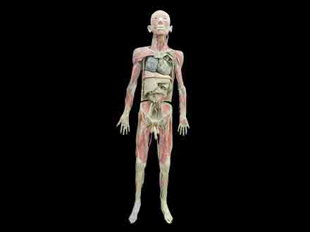 Whole body plastinaiton