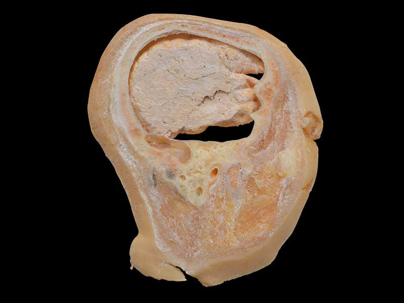 sagittal section of head plastinated specimen