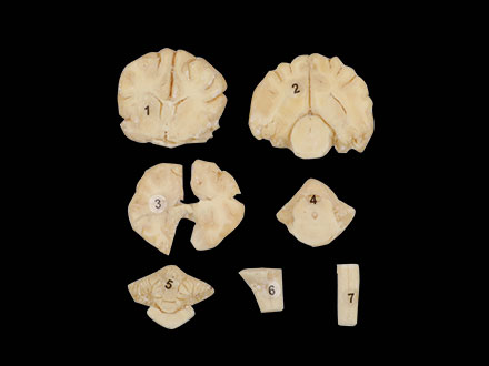 Series Cut of Dog Brain Plastination