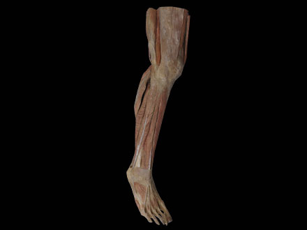 Superficial Muscles of Lower Leg Plastination